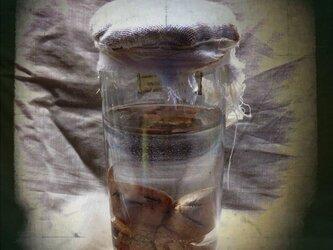 胎児標本・にこやかシャム双生児の画像